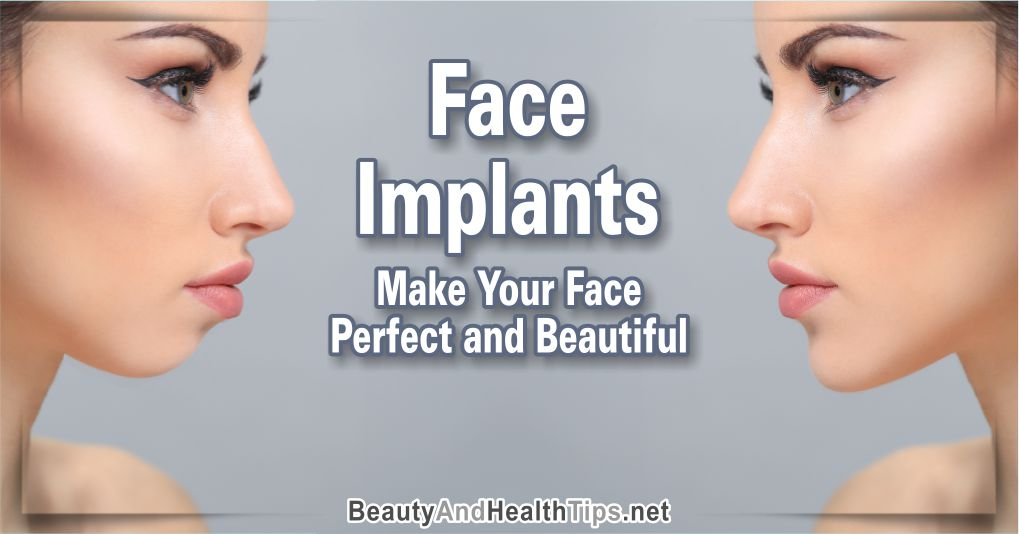 Face Implants